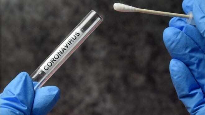ბრიტანეთში პირველად 10 000-ზე მეტი კოვიდ-ინფიცირების შემთხვევა გამოვლინდა
