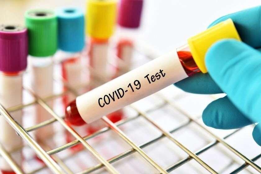 Covid-19-ით ინფიცირების 794 შემთხვევა დაფიქსირდა, გამოჯანმრთელდა – 498 ადამიანი